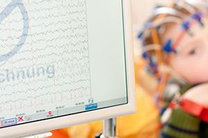 EEG-Ableitung